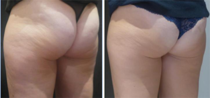cellulite graisseuse