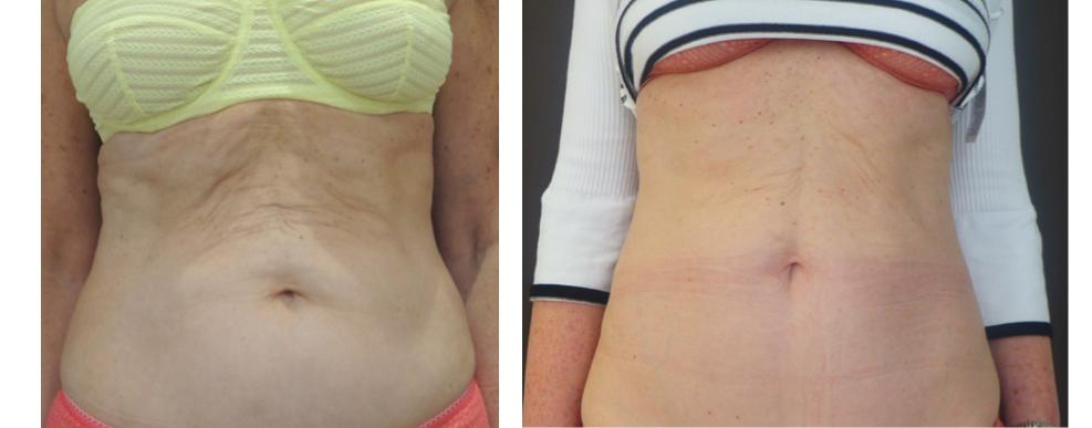 Laser sculpsure relâchement abdomen